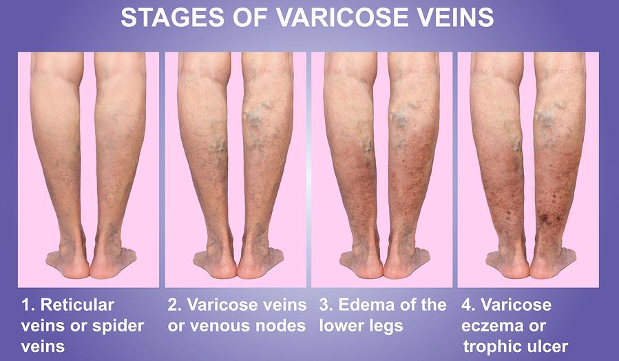 493c0a8ff5 Varicose Veins – North Texas Vascular Center
